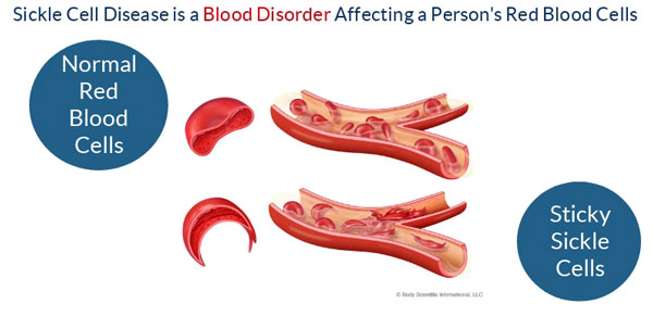 What is Sickle Cell Disease? – STAR